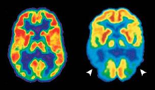 ПЭТ при болезни Альцгеймера