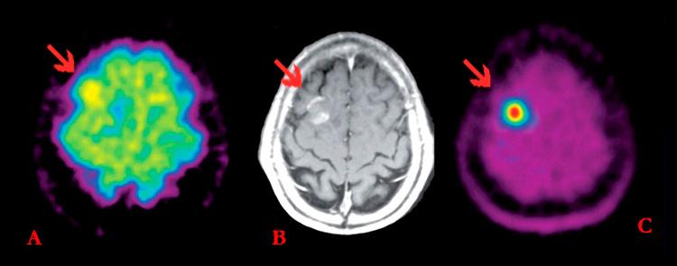 Сравнение методов диагностики опухолей головного мозга